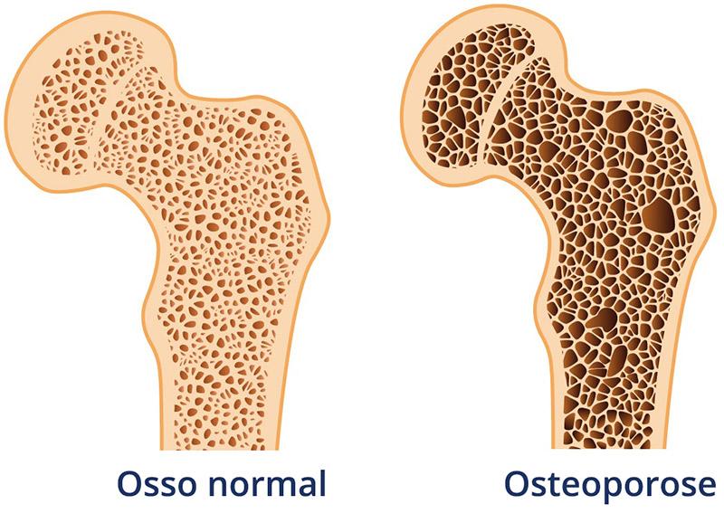 Osteoporose-monicacabral