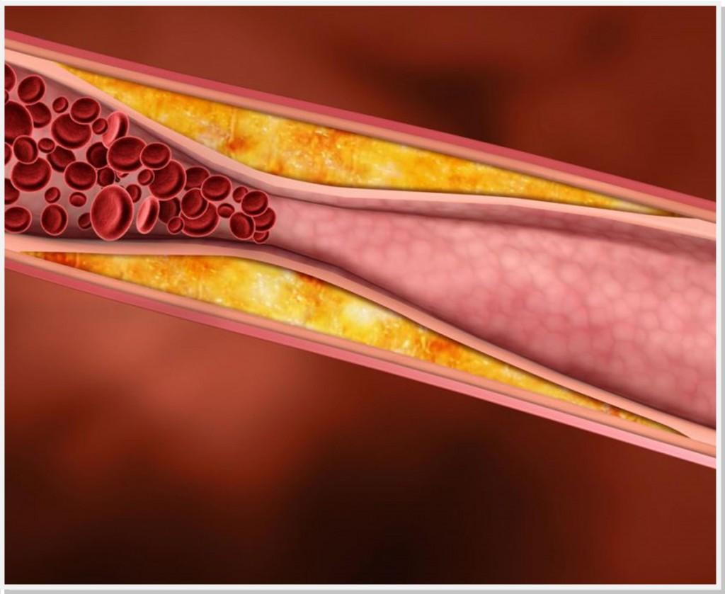DAOP-dr-daniel-benitti-cirurgiao-vascular-1024×839