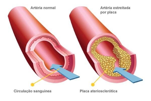 arteria-estreita-placa