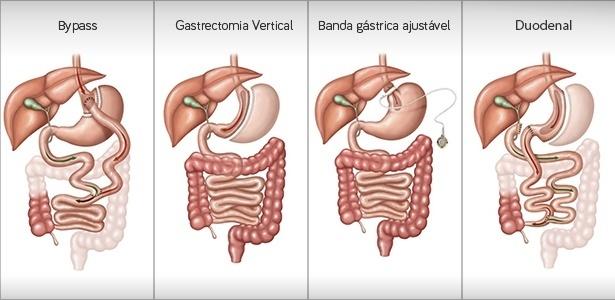 tecnicas-de-cirurgia-bariatrica-e-metabolica